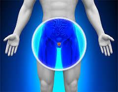 前立腺がんと男性の健康